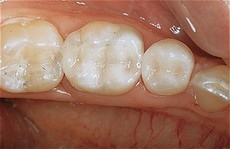Amalgam_Silver_Fillings_replacedment_with_natural_tooth_fillings.jpg