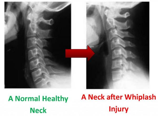 Turnersville Chiropractor | Turnersville chiropractic Car Accident |  NJ |