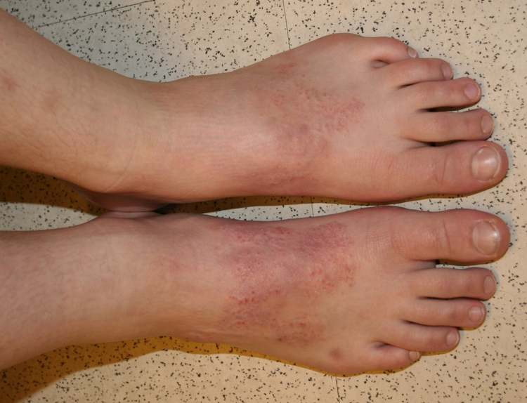 Ashland Podiatrist | Ashland Allergic Contact Dermatitis  | OR | Ankle and Foot Specialists of Southern Oregon |