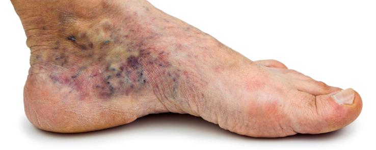 foot_pain.png