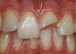 Dental in Columbus OH