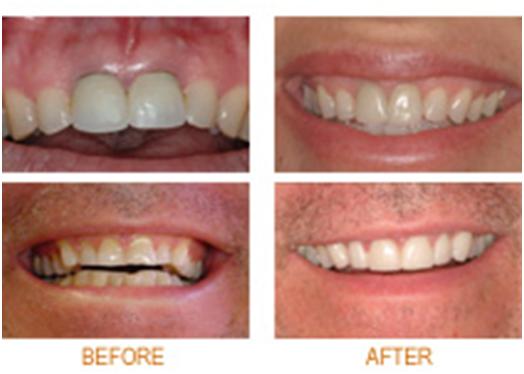 All Smiles Family Dental Of NJ in Williamstown NJ