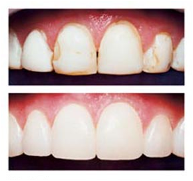dental_bonding_pro.png