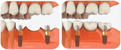 dental_implant1.png