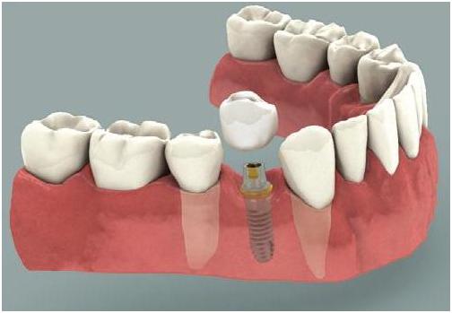 dental_implant3.png