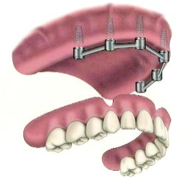 implant_supported_dent1.png