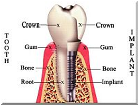 restore_dental_implant.png