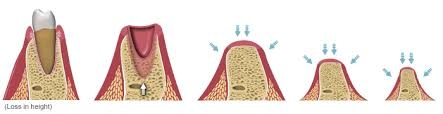 implants6.jpg