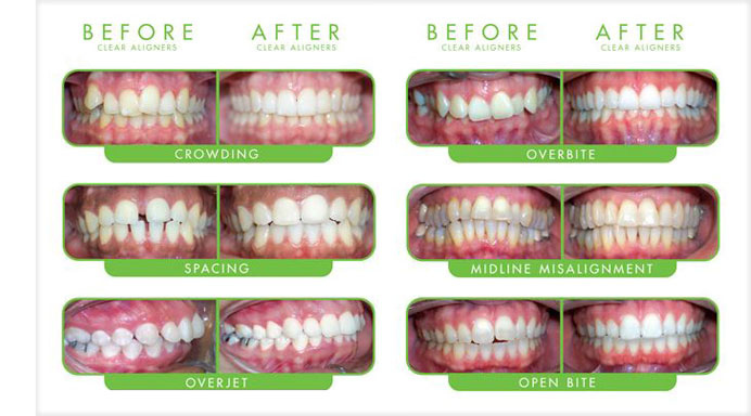 Burton Dental Associates P.C. in Grand Rapids MI