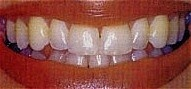 Teeth_Whitening_bef.jpg