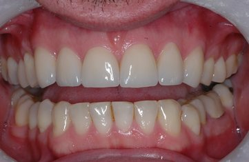 Cosmetic, Implant & Family Dentistry in Feasterville PA