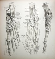 Des Moines Podiatrist   Des Moines Conditions   IA   Advanced Foot & Ankle Clinic  