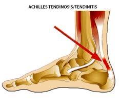 Achilles_Tendonitis.jpg