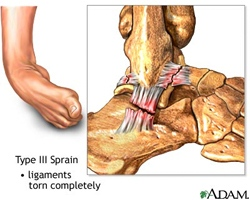 Ankle_Sprain.jpg