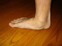 Flatfoot1.jpg