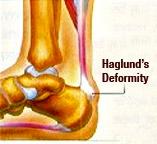 Haglunds_Deformity1.jpg