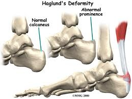Haglunds_Deformity2.jpg