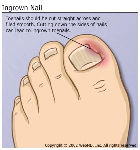 Ingrown Toenai Surgery Boise.jpg