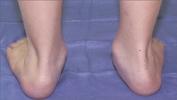 pediatric_flatfoot1.jpg