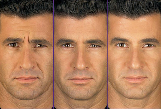 xeomin_before_and_after1.jpg