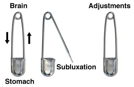 Lansing Chiropractor Back Pain Neck Pain Headaches Sciatica Shoulder Pain Hip Pain