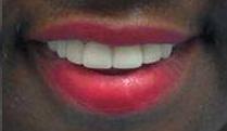 smile_aft13.png