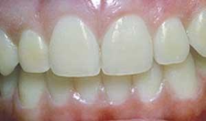 teeth_whitening1_1.jpg