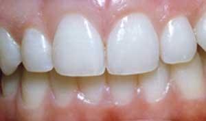 teeth_whitening1_2.jpg
