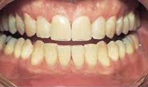 teeth_whitening2_1.jpg
