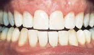 teeth_whitening2_2.jpg