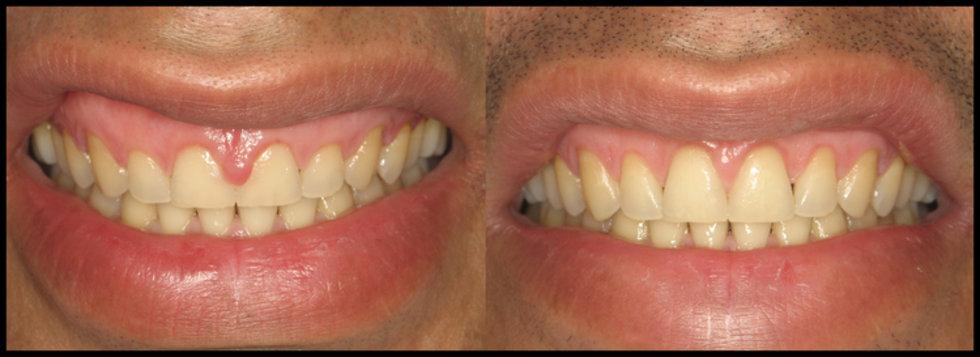 Cosmetic Gum Treatment in Tampa, Fl