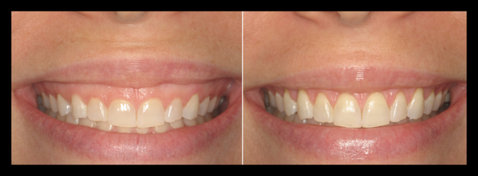 Gummy Smile Treatment Before & After Photos