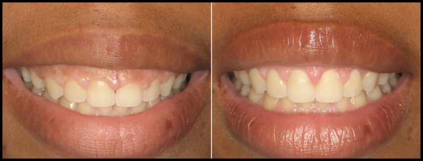 Cosmetic Gum Lift in Tampa Before & After