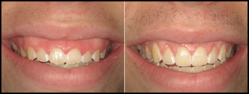 Before and After Gum Lift in Tampa, FL