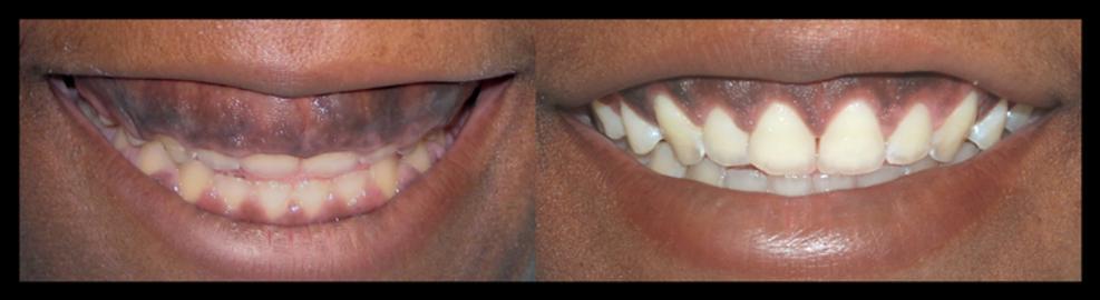 Short Teeth Treatment in Tampa, Fl