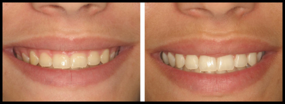Short Teeth Treatment Before and After Tampa, FL