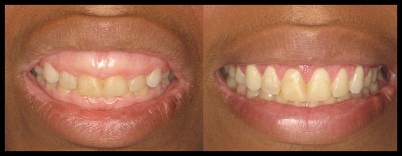 Short Teeth Treatment in Tampa, FL