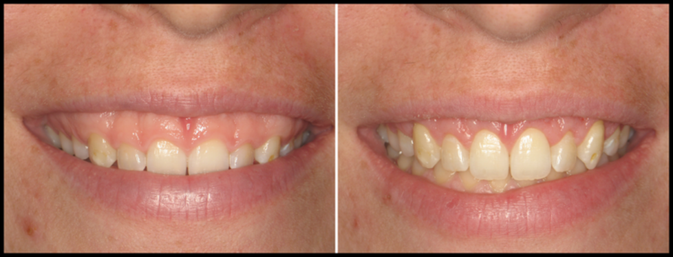 Gummy Smile treatment in Tampa, FL - Before and after photos
