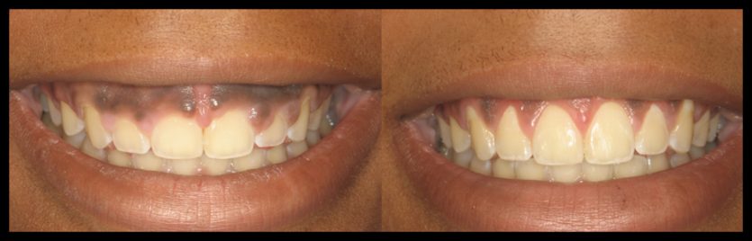 Cosmetic Gum Shaping in Tampa, FL