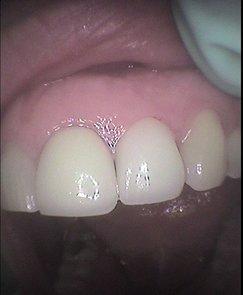 great smile dental group in Roseville CA