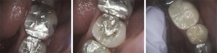Large Pitted Silver Fillings