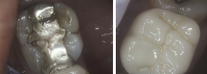 Cracked Tooth and Silver Filling