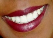 Happy Smiles Dental Office in South Side Chicago IL