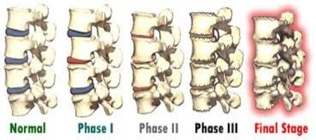 18901 Chiropractor   18901 chiropractic Spinal Degeneration    PA  