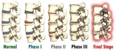 18901 Chiropractor | 18901 chiropractic Spinal Degeneration |  PA |