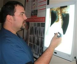 Chiropractor Lansdale PA