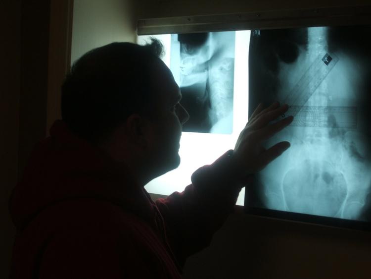 Lansdale PA Chiropractor