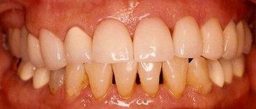 Metropolitan Dental Group in Bell Gardens CA
