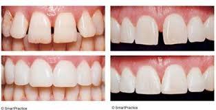 Santa Fe Dentist | Dentist in Santa Fe