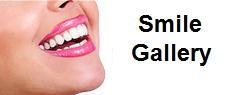 smile_gallery_3.jpg